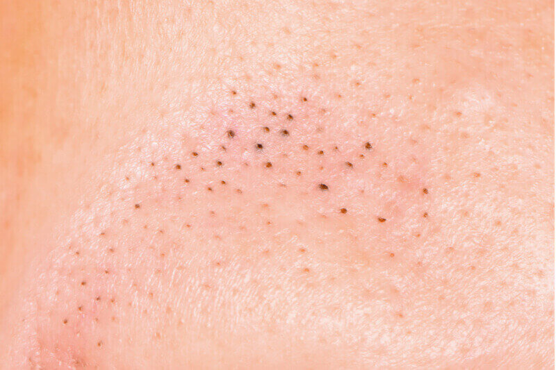Blackheads and whiteheads acne
