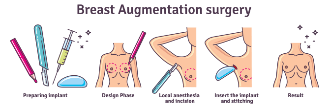 breast augmentation surgery steps