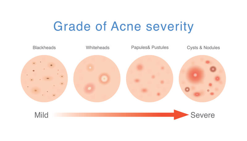 acne inflammation severity diagram
