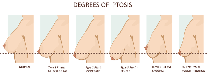 degrees of ptosis diagram