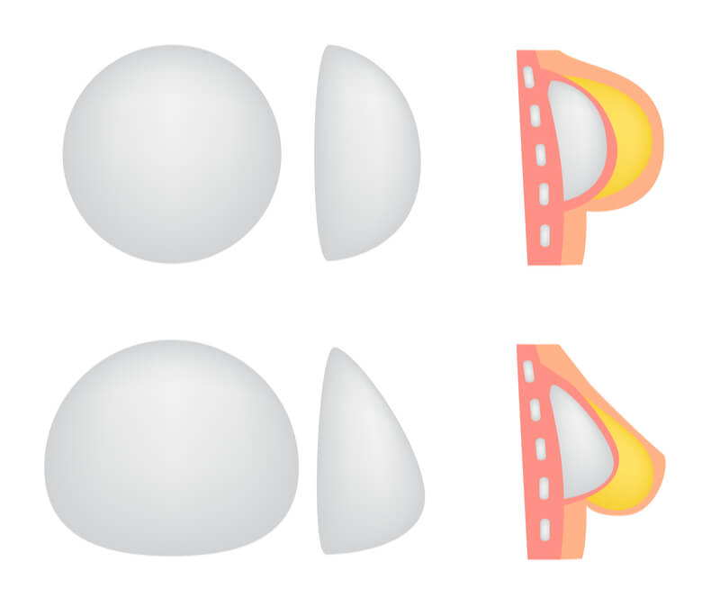 different shapes of breast implants