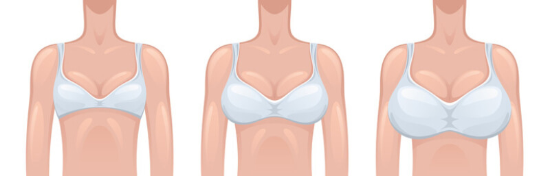 different sizes of breast implants diagram