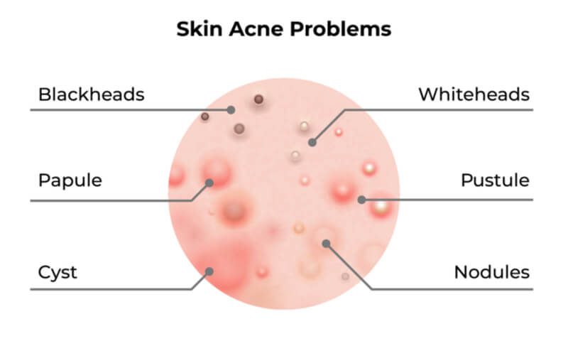 different types of acne cystic diagram