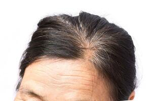 forehead lines