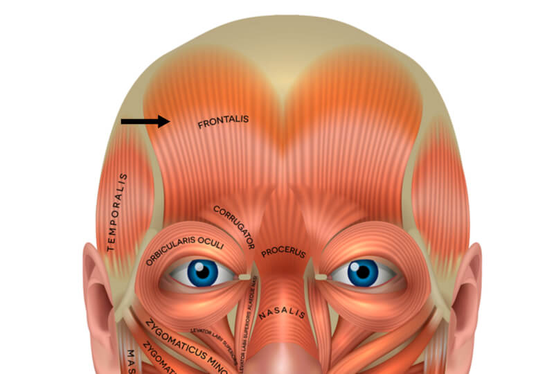 frontalis muscle forehead wrinkles diagram