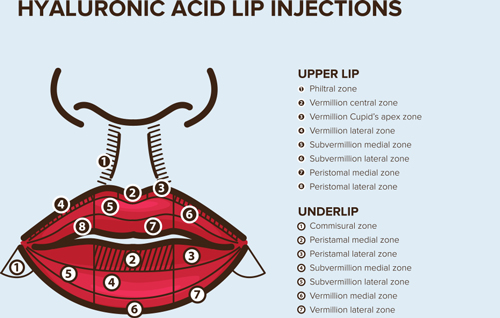 hyaluronic acid lip filler injections