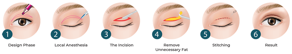incisional double eyelid surgery process