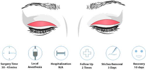 incisional double eyelid surgery process and recovery