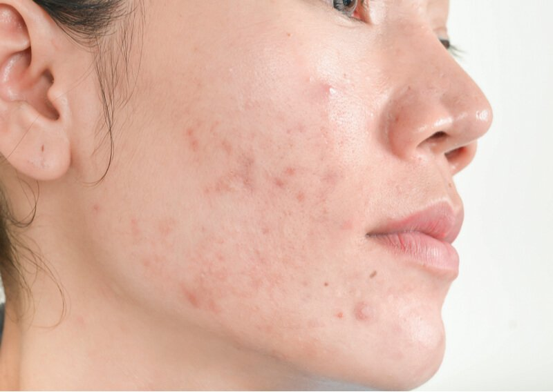 lifestyle changes to remove acne