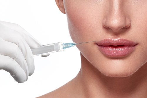 lip filler injection