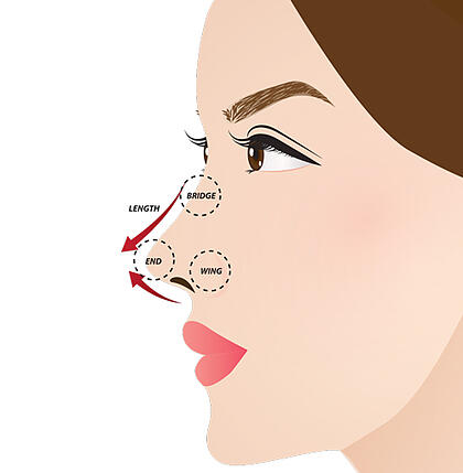 nose slimming diagram