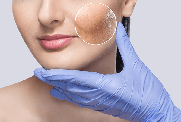 acne scar removal treatment care