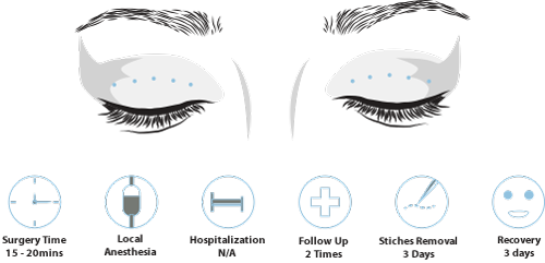 double eyelid surgery process and recovery
