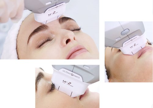 ultraformer 3 hifu facelift treatment areas